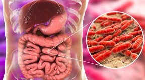Cos'è la disbiosi intestinale